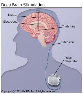 How to improve fetal brain development image 3