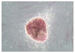Amniotic Fluid Stem Cells