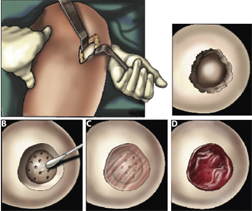 An illustration of the cartilage repair surgical procedure. A mini-incision exposes the cartilage defect (top left-hand panel), and any dead tissue is removed from the edges. (B) The adhesive is then applied to the base and walls of the defect, followed by microfracture. (C) Lastly, the hydrogel solution is injected into the defect. (D) Bleeding from the microfracture holes is trapped in and around the hydrogel.Science Translational Medicine/AAAS