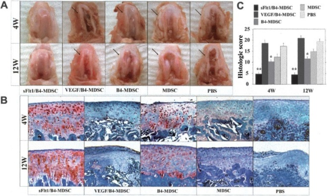 A and B, Macroscopic (A) and histologic (B) evaluation of representative joints from rats injected with muscle-derived stem cells (MDSCs) transduced with soluble Flt-1 (sFlt-1) and bone morphogenetic protein 4 (BMP-4 [B4]) (sFlt-1/BMP-4–MDSC), MDSCs transduced with vascular endothelial growth factor (VEGF) and BMP-4 (VEGF/BMP-4–MDSC), MDSCs transduced with BMP-4 alone (BMP-4–MDSC), nontransduced MDSCs (MDSC), or phosphate buffered saline (PBS) alone, 4 and 12 weeks after transplantation. Four weeks after transplantation, the sFlt-1/BMP-4–MDSC and BMP-4–MDSC groups macroscopically and histologically showed smooth joint surface with well-repaired articular cartilage and Safranin O–positive hyaline-like cartilage (red staining in B). However, the other groups showed marked arthritic progression, synovial hypertrophy, and osteophyte formation (arrows). Twelve weeks after transplantation, although the sFlt-1/BMP-4–MDSC group still showed well-repaired articular cartilage, the other groups exhibited more severe arthritis compared with 4 weeks. (Original magnification  100.) C, Semiquantitative histologic scores for all groups, 4 and 12 weeks following transplantation. The sFlt-1/BMP-4–MDSC group had the lowest (best) scores of all groups. Bars show the mean and SEM.   P   0.05 versus all other groups;   P   0.05 versus the VEGF/BMP-4–MDSC, MDSC, and PBS groups.