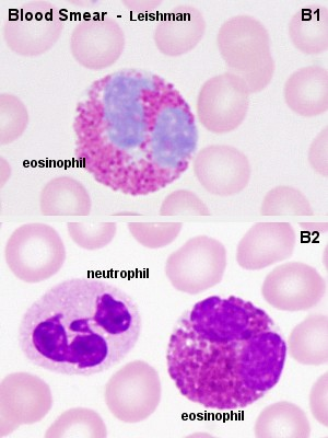 Granulocytes-blood smear