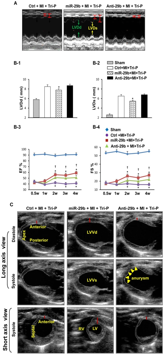 (A): M-mode echocardiograph data in three groups. (B): Quantification analysis for heart function. Quantitative data for LVDd (B-1), LVDs (B-2), EF (B-3), and FS (B-4) 4 weeks after Tri-P implantation. *p,0.05 vs. Ctrl+MI+Tri-P group; {p,0.05 vs. Anti-29b+MI+Tri-P group. LVDd, left ventricular enddiastolic diameters; LVDs, left ventricular end-systolic diameters; EF, ejection fraction index; FS, fractional shortening. All values expressed as mean 6 SEM. n = 6 for each group. (C): Two-D mode echocardiograph data in three groups, analyzed by long-axis and short-axis views. *p,0.05 vs. Ctrl+MI+Tri-P group; {p,0.05 vs. miR-29b+MI+Tri-P group. Ctrl, control mimic pretreatd rat with Tri-cell patch graft; miR-29b, miR- 29b mimic pretreated rat with Tri-cell patch graft; Anti-29b, miR-29b inhibitor pretreated rat with Tri-cell patch graft. White dotted lines indicate endocardium and epicardium.