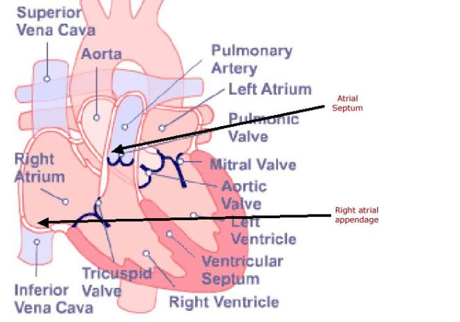 atrial appendage