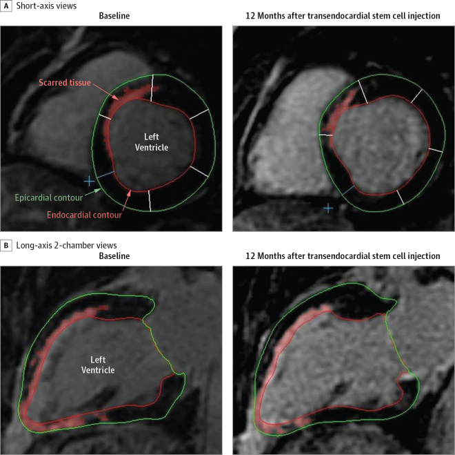 A, Short-axis views of the basal area of a patient's heart, with delayed tissue enhancement delineated at the septal wall. Delayed tissue enhancement corresponds to scarred tissue and is depicted brighter than the nonscarred tissue (automatically detected and delineated with red using the full width at half maximum technique). The red, green, and white lines demarcating the endocardial, epicardial contours, and borders of the segments, respectively, were drawn manually. Twelve months after injection of mesenchymal stem cells, scar mass was reduced from 30.85 g at baseline to 21.17 g at 12 months. B, Long-axis 2-chamber views of the same heart with delayed tissue enhancement delineated at the anterior and inferior wall, as well as the entire apex. At baseline and at 12 months after injection of mesenchymal stem cells, the delayed tissue enhancement receded in the midinferior and basal anterior walls (see Interactive of representative cardiac MRI cine sequences).