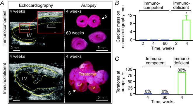 Immunocompetent status defines cell growth outcome  Immunocompetent infarcted hearts were free from uncontrolled growth following iPS cell implantation as documented in vivo (echocardiography; A and B) and on autopsy (A and C) during the 60-week-long follow-up, in contrast to teratoma formation observed in immunodeficient hosts. In A: M, mass; LV, left ventricle; S, suture for coronary ligation. In B, data represent means ± SEM (n = 8 immunocompetent hearts: n = 7 immunodeficient hosts); *P < 0.05 versus immunocompetent.