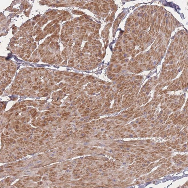 Immunohistochemistry-Paraffin: Bone marrow stromal cell antigen 1 Antibody [NBP2-14363] Staining of human smooth muscle shows moderate cytoplasmic positivity in smooth muscle cells.