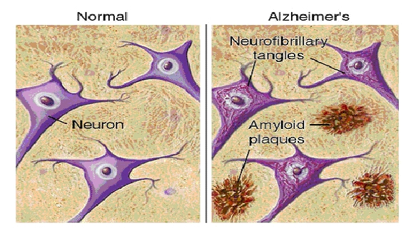 Beta_amyloid