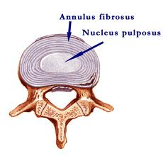 Intervertebral disc structure