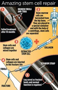 Bone healing procedure