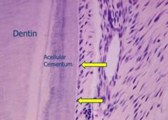 Cementum-peridontal ligament