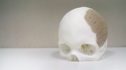 3D Printed Facial Implant Approved by the FDA – Beyond the Dish