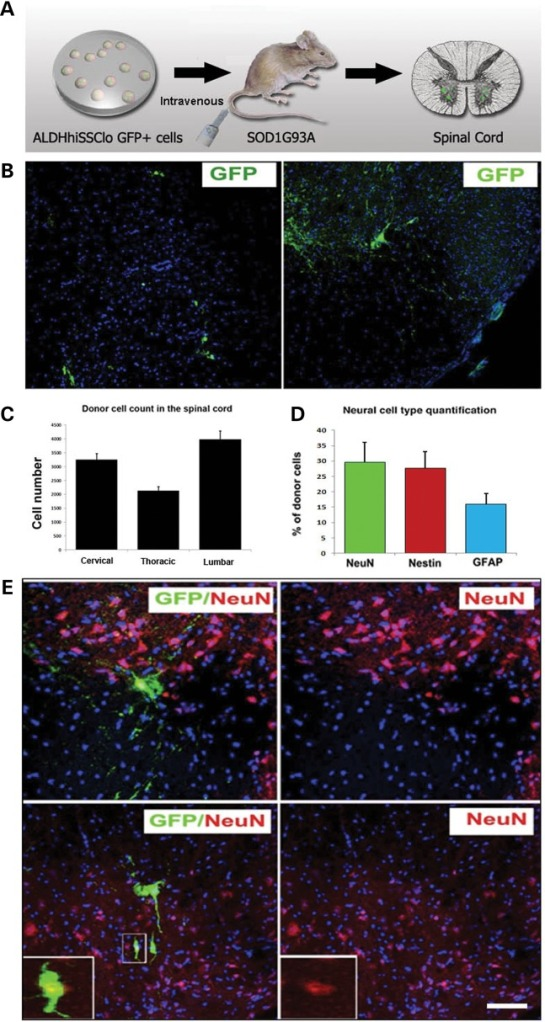 iPSC-derived NSCs migrate and engraft into the spinal cords of SOD1G93A mice after intravenous transplantation. (A) Experimental design: GFP-NSC cells (1 × 106 cells) were delivered by weekly intravenous injection into SOD1G93A mice starting at 90 days of age. (B and C) Donor GFP+ cells were detected in the spinal cord, particularly in the anterior horns. (C) Quantification of GFP-donor cells in the cervical, thoracic and lumbar spinal cord. Error bars indicate the SD. (D) Quantification of the phenotype acquired by the donor cells revealed the presence of cells with an undifferentiated phenotype (nestin), a neuronal (NeuN) phenotype and a glial (GFAP) phenotype. Error bars indicate the SD. (E) Representative images of cells acquiring a neuronal phenotype that are positive for NeuN (red) and GFP (green). Scale bars: (B) 150 µm right, 120 µm left; (E) 50 µm upper panel, 75 µm lower panel.