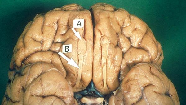 Olfactory lobes in brain
