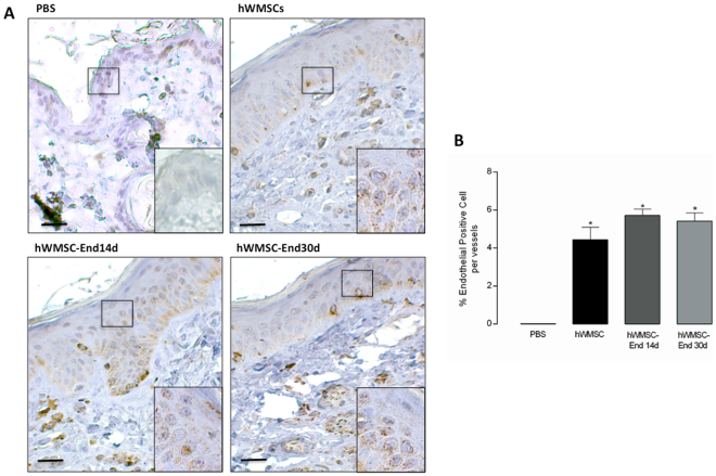Immunohistochemical detection of human mesenchymal cells in a wound-healing model. A. Immunohistochemical staining of human mitochondria was performed in permeabilized tissue sections obtained after 12 days of subcutaneous injection of PBS, hWMSCs, hWMSC-End14d or hWMSC-End30d in mice. Cell nuclei were stained with hematoxyline. In B. Number of positive cells per vessel. Representative images of 5 independent experiments, in duplicate. Magnification x40 and insert 100x. Bars 50 µm.
