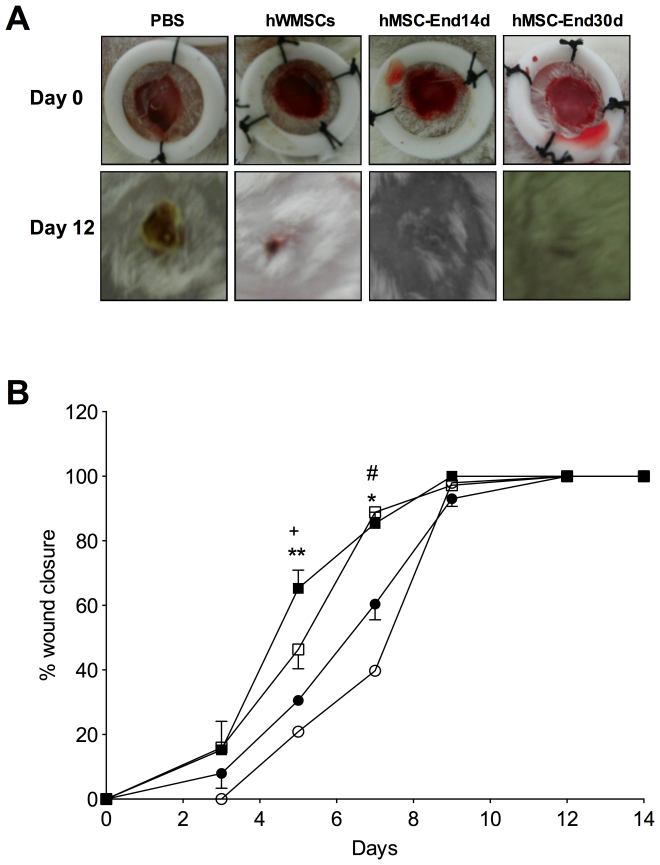 Effect of hWMSCs and endothelial-differentiated hWMSC transplantation in a wound-healing model. A) Representative images of wounds at day 1 (top panels) and 12 (lower panels) after injury and subcutaneous injection of hWMSCs, hWMSC trans-differentiated into endothelial cells for 14 days (hWMSC-End14d) or 30 days (hWMSC-End30d), or control (PBS). B) Wound healing quantified in PBS (○), hWMSC (•), hWMSC-End14d (□) or hWMSC-End30d (▪) treated mice (n = 5 independent experiments, in duplicate). Values are expressed as mean±S.E.M, +P<0.05 in hWMSC-End30d v/s hWMSC, hWMSC-End14d, at the corresponding time; **P<0.03 in hWMSC-End30d v/s PBS; *P<0.001 in hWMSC-End30d v/s PBS; # P<0.01 in hWMSC-End30d v/s PBS.