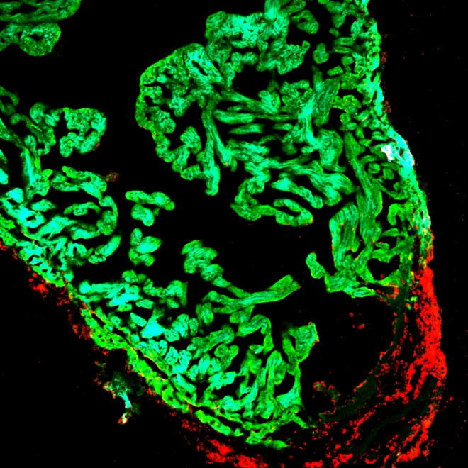 An injured zebrafish heart showing proliferating cells in the wounded area of the heart (red) and cardiac muscle cells (green).