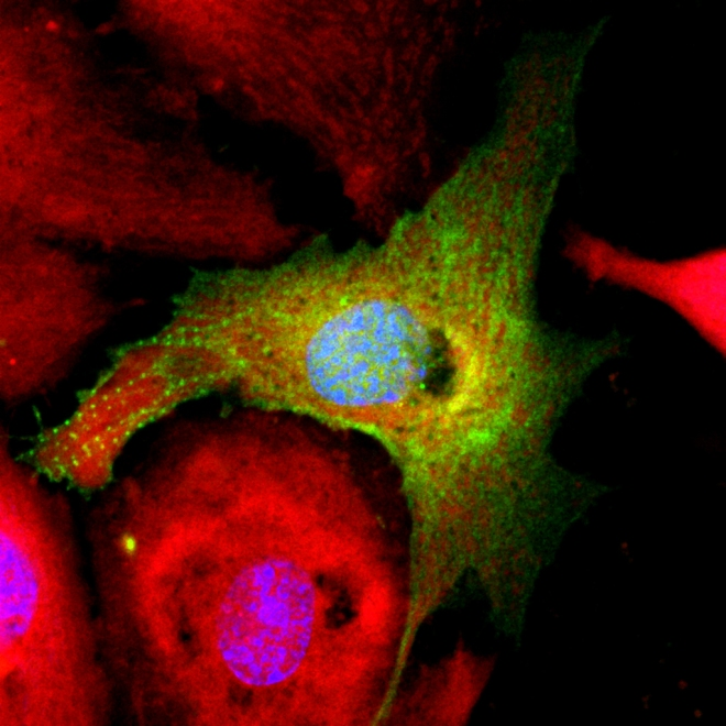 n a dish, heart muscle cells return to a precursor-like state after pro-regenerative treatment with microRNA inhibitors. Green shows a disorganized cardiomyocyte cytoskeleton indicative of cell dedifferentiation; red shows mitochondrial organization.