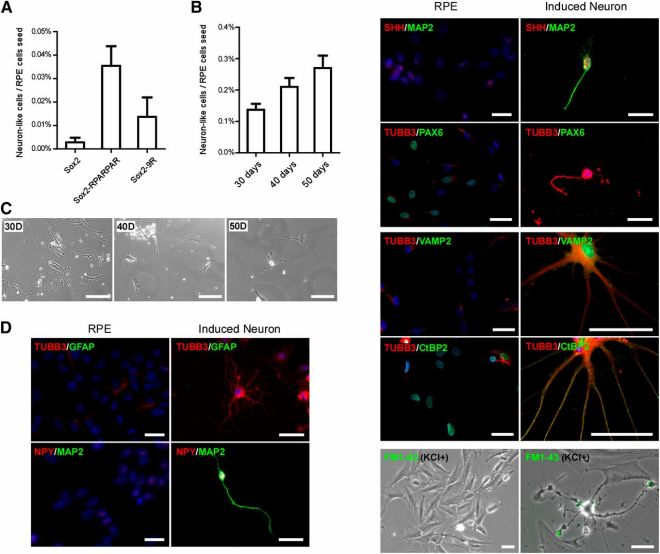 Reprogramming human fetal RPE (hfRPE) cells to neurons using recombinant SOX2 proteins. (A): Efficiency of hfRPE cells to be reprogrammed to neuron-like cells after recombinant proteins was added to the media every 24 hours for 30 days. (B): Efficiency of hfRPE cells to be reprogrammed by adding SOX2-RPARPAR recombinant protein every 48 hours for different time courses. (C): Representative images of hfRPE (fRPE1914) cells during reprogramming to neuron-like cells after 30, 40, and 50 days in culture with SOX2-RPARPAR protein. Scale bars = 100 μm. (D): Representative images of hfRPE (fRPE1914) cells reprogrammed to neuron-like cells expressing neuronal markers, but not an RPE marker (PAX6), using SOX2-RPARPAR protein. Scale bars = 50 μm. Abbreviations: D, days; RPE, retinal pigmented epithelial cells.