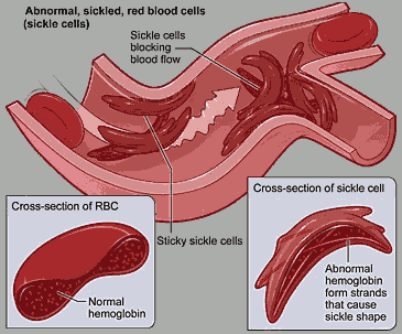 Sickle_cell 2