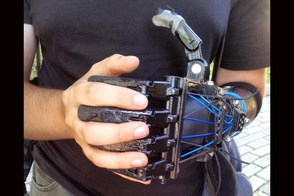 3-D printed prosthetics