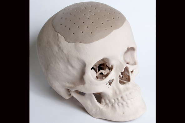 Printed replacement for skull
