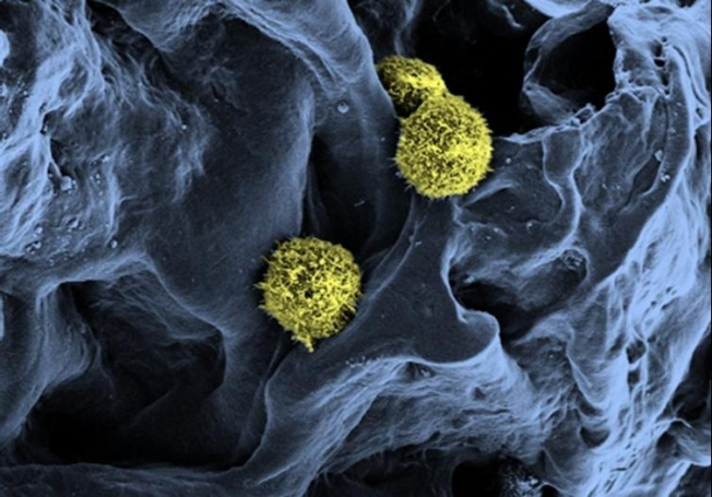 Scanning electron microscopy of stem cells (yellow / green) in a scaffold structure (blue) serving as a basis for the artificial bone marrow.