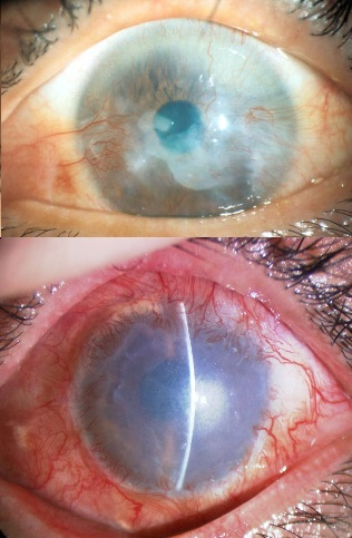 Eyes that suffer mildly from limbal stem cell deficiency. The stem cells stall and other cells grow over the cornea. The window of the eye, normally clear and transparent, is thus blurred, leading to reduced vision.Photo: Dr. Takahiro Nakamura, Department of Ophthalmology/Kyoto Prefectural University of Medicine.