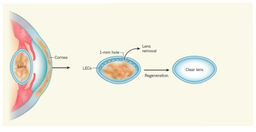 lensregeneration_tx600