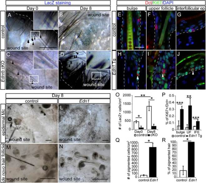 Overexpression of Edn1 Promotes Upward Migration of McSCs and Generation of Epidermal Melanocytes following Wounding (A–D) Whole-mount image of X - gal - stained wound area of Dct-LacZ (control; A and B) and Tyr-CreER ; EdnrB fl/fl ; Dct-lacZ (C and D) at indicated days after re-epithelialization. (E–J) Double immunohistochemical staining of Dct and Ki67 in the bulge (E and H), upper hair follicle (F and I), and inter-follicular epidermis (G and J ) in control (E–G) and K14-rtTA ; TetO-Edn1-LacZ (Edn1; H–J) mice. (K–N) Whole - mount analyses of wound site (K and L) and de novo hair follicles (M and N) within wound site from control (K and M) and Edn1 mice (L and N) at 8 days after re-epithelialization. (O–R) Quantification of the number of Dct - LacZ+ cells in wound site (O), the percentage of Ki67+/Dct+ cells (P), the number of pigmented cells in wound site (Q), and the percentage of pigmented de novo hair (R), respectively. Dashed lines indicate periphery of wound site in (A) and (D) and boundary between epidermis and dermis in (E)–(J). Arrowheads show Dct - LacZ + cells in wound area in (A)–(D) and Ki67+/Dct+ cells (H)–(J). IFE, inter-follicular epidermis; UF, upper follicle. Data are presented as the mean ± SD. *p < 0.01; **p < 0.02; ***p < 0.05. The scale bar represents 1 mm in (A), 50 m m in (E), 200 m m in (K) and (L), and 100 m m in (M) and (N).