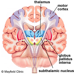 subthalamic-nucleus