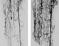 REX-001-induced new vasculature