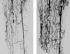 REX-001-induced new vasculature
